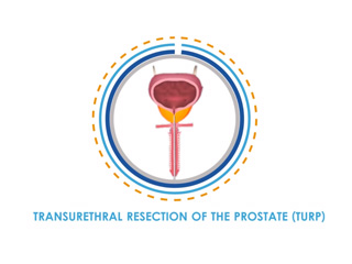 Benign Prostatic Hyperplasia (BPH): Men's Health